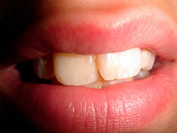 К чему снится выпадение зубов: без крови, с кровью, один зуб и др.
